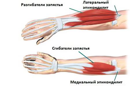 a bal könyökízület bursitisének kezelése)