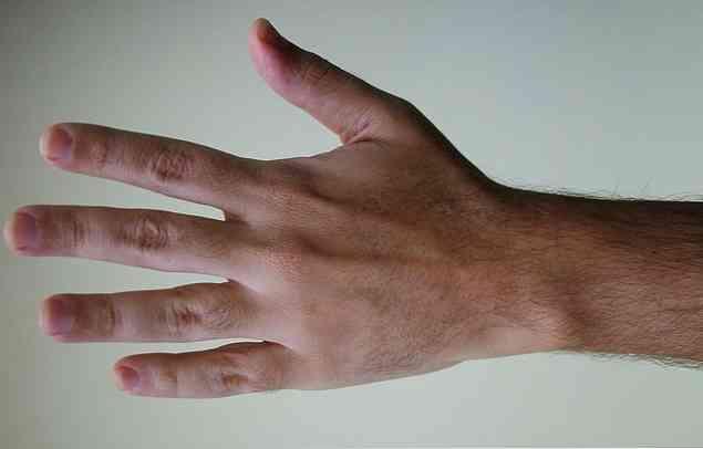 az ujjak ízületei zsibbadtak ízületi gyulladásos kar kezelése