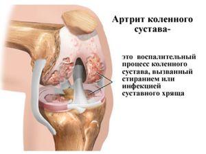 mi okozza a vállízületek fájdalmát)