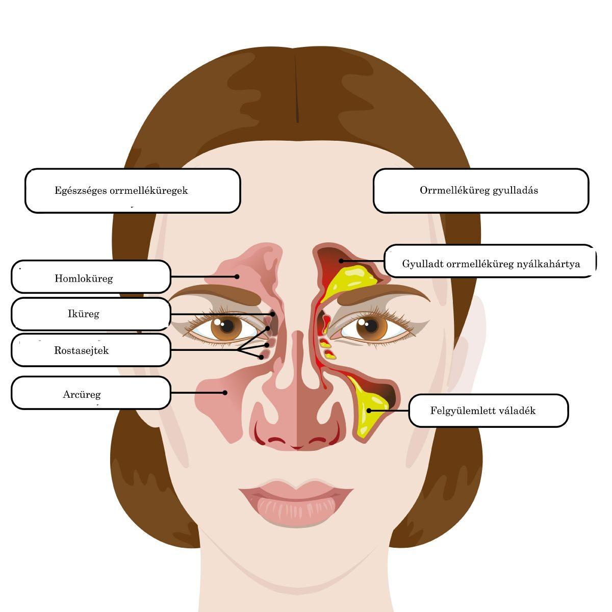 az arc ízületi gyulladásainak tünetei és kezelése)