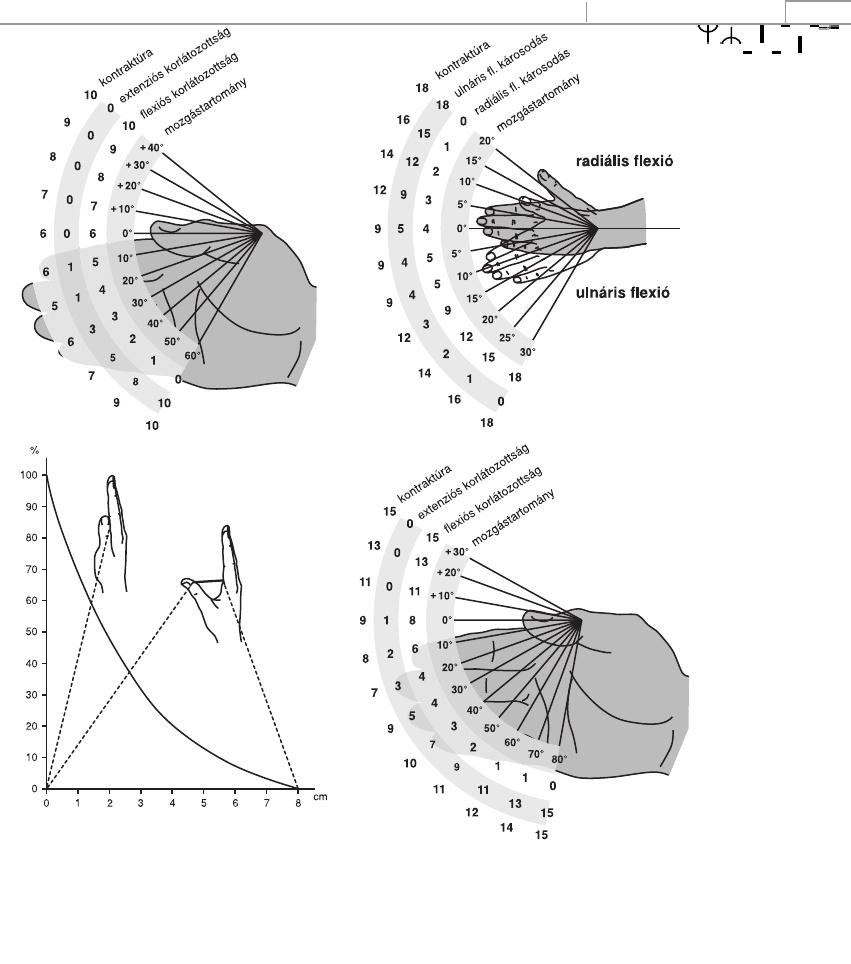 a csigolyák ízületi spondylarthrosis artrózisa