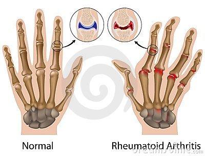 rheumatoid arthritis ujján