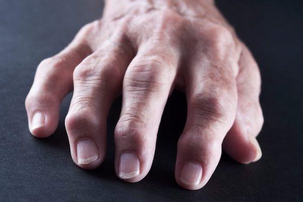 fájdalom a kéz ízületi ízületeiben