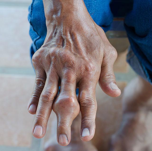 duzzadt ízület az ujján, és fáj