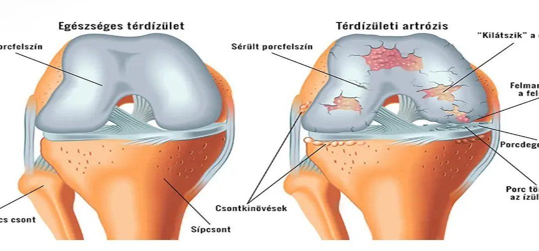 térd artrózisának előrejelzése)