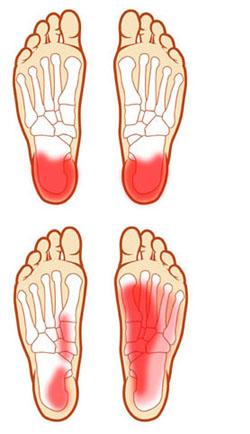 fáj a láb talpa)