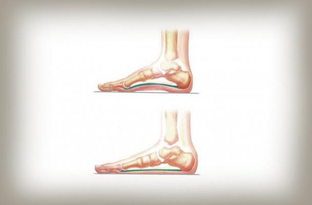 Lúdtalp vagy lapos láb (befelé dőlő bokák) | Pasamed