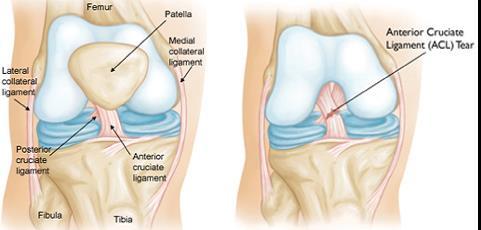 fájdalom a térd deformáló artrózisával)