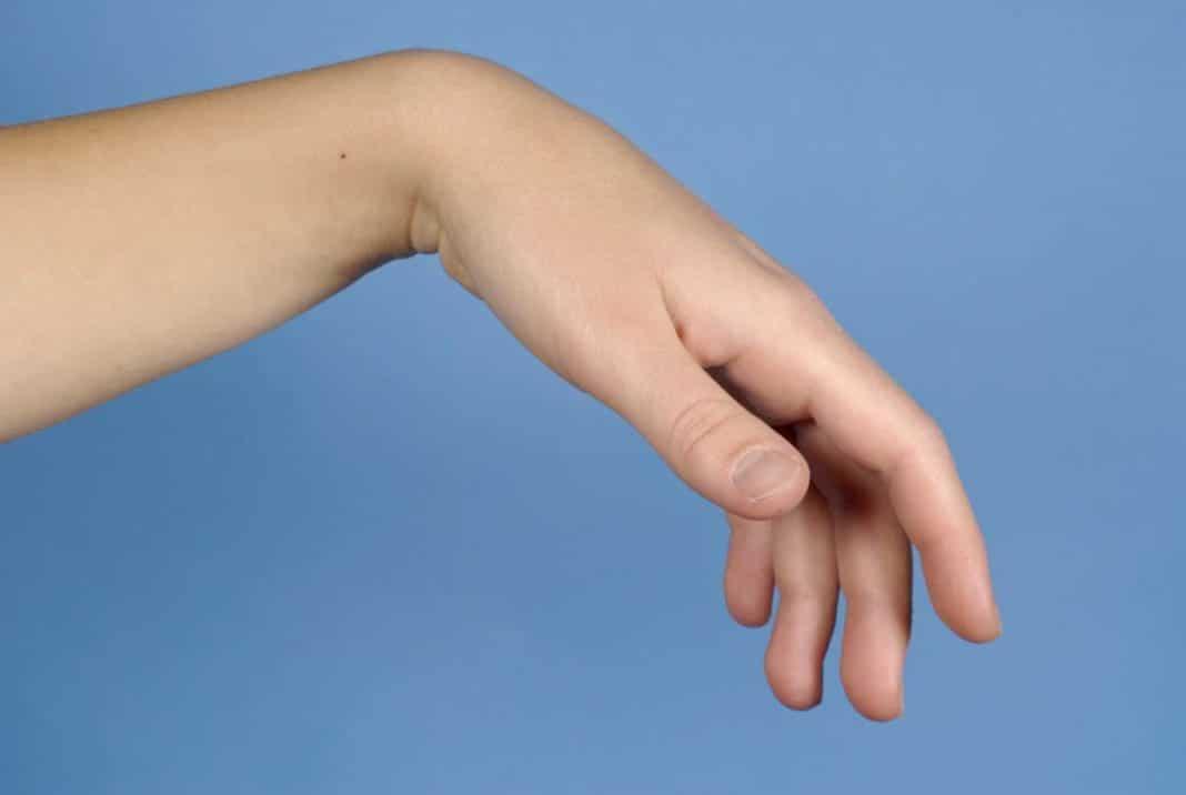 a könyökízület traumatikus bursitisz kezelése