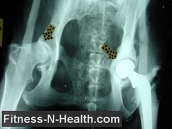 az ízületi gyulladás különbsége a csípőízület artrózisában)
