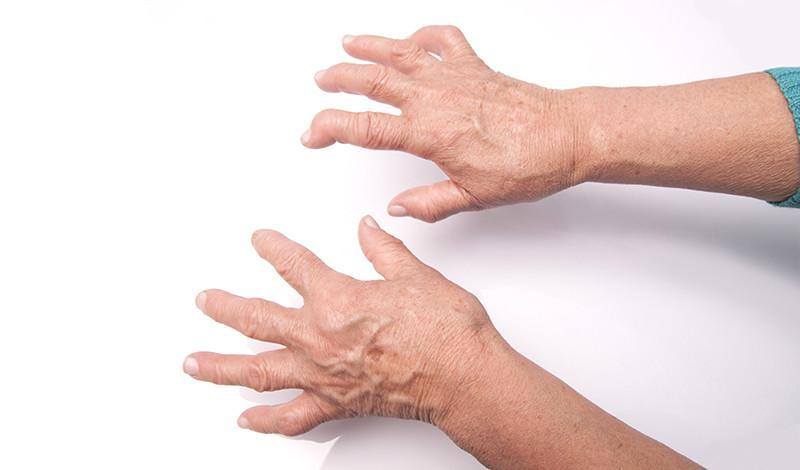 a kéz ujjai ízületeinek duzzanatát okozza