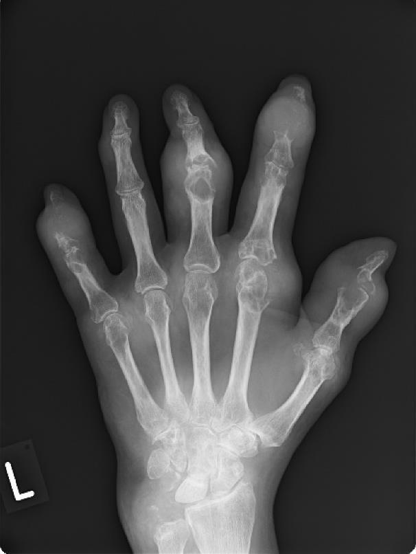 hogyan kezelhető a coxarthrosis deformáló arthrosis