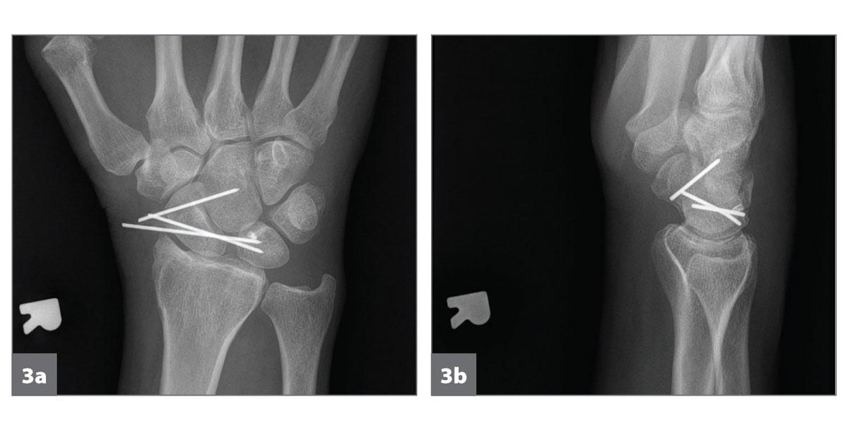 1. stádiumú brachialis artrosis)