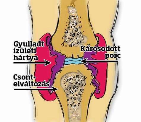 térdízületek ízületi gyulladása, amelyek