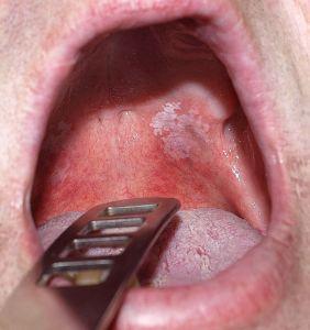 fájó fájdalom a száj ízületében hogyan kezeljük a 2. fokú boka-artrózist
