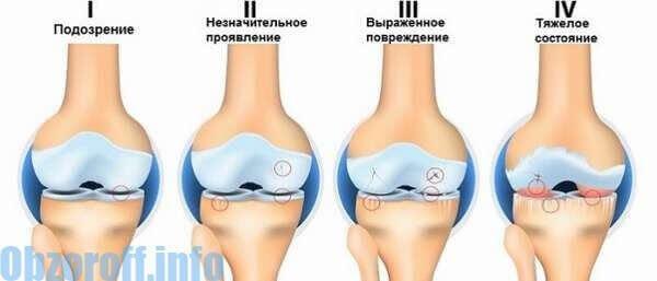 kondroprotektorok ízületi kezelés)
