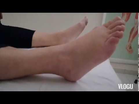 boka kezelési áttekintés)
