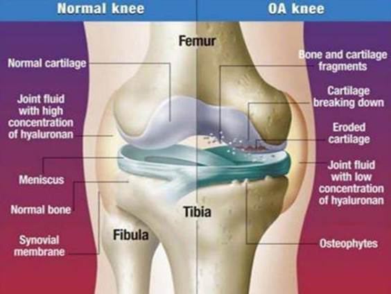 az ízületi gyulladás különbsége a csípőízület artrózisában éjszakai csípőfájdalom