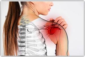 hogyan gyógyítható a vállízület ízületi gyulladása