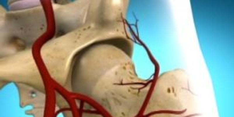 torna a csípőízület fájdalmáról)