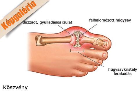 a lábujj ízületének betegségei