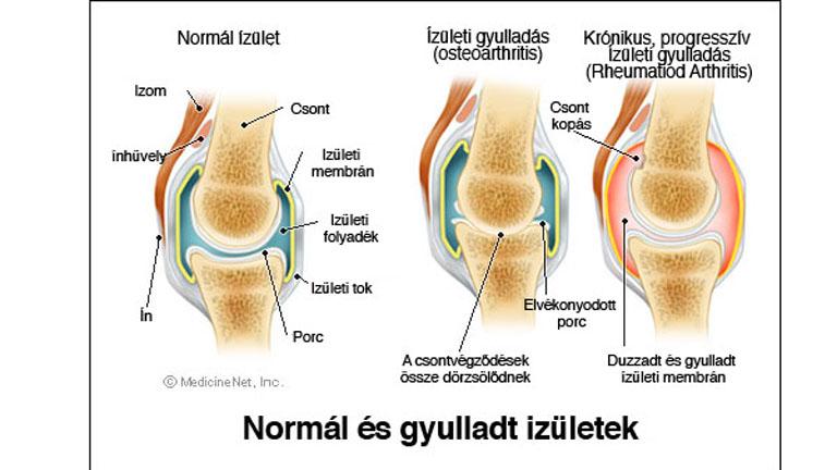 ízületi gyulladás vizsgálatok fájdalom a térd hemarthrosisával