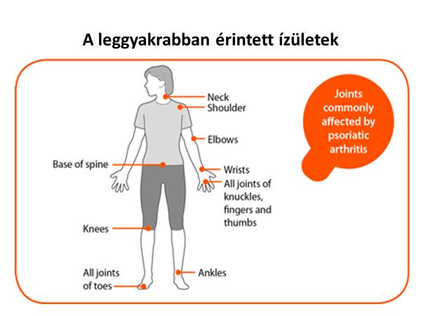 a csípő-tünetek psoriasis ízületi gyulladása