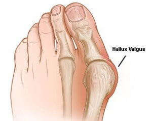 égő fájdalom a nagy lábujj ízületében
