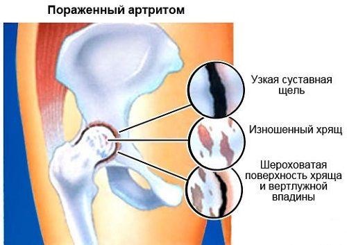 a csípőízület fáj az ágyékban