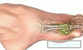 lábízület fájdalma kanyarban