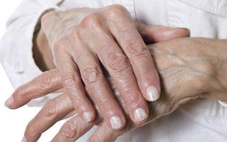 térdízületi gyulladás kezelése a cseh köztársaságban