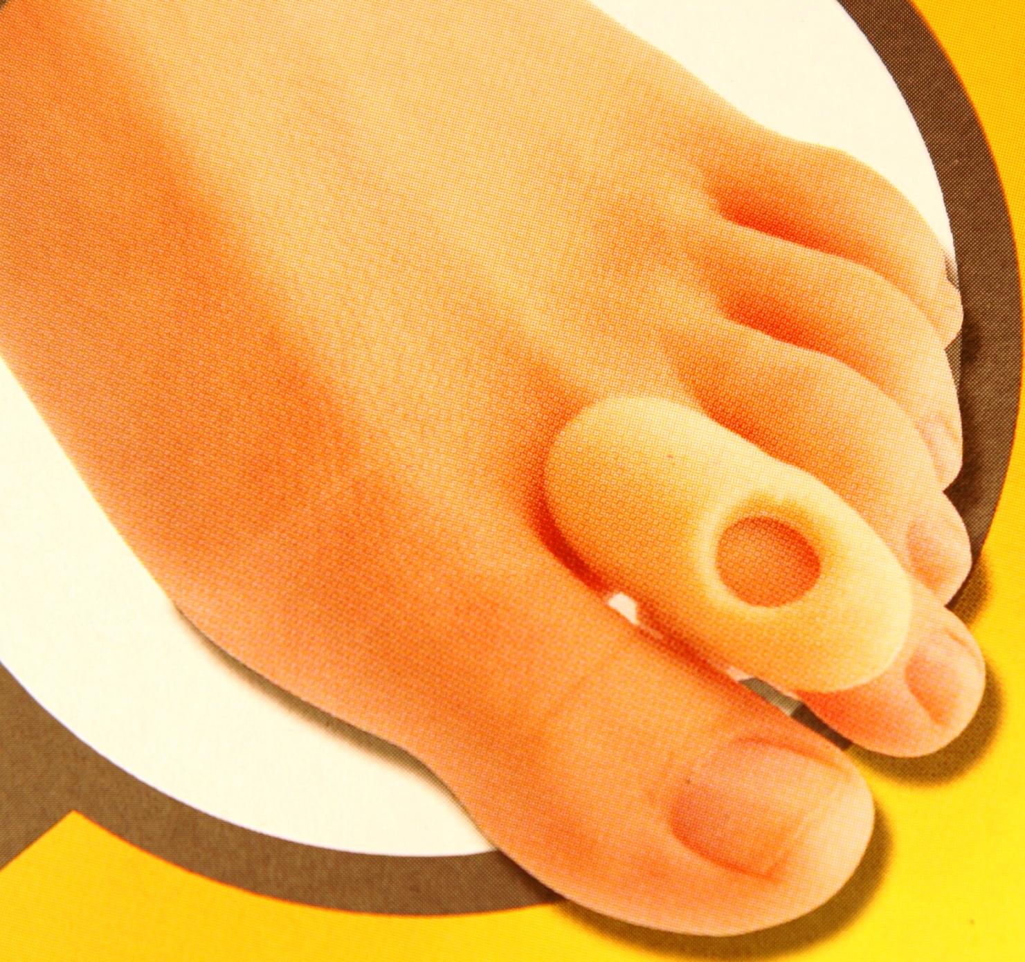 a láb és a lábujjak ízületi gyulladása)
