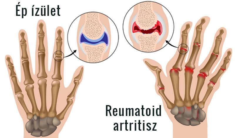 rheumatoid arthritis kéz tünetek kezelése