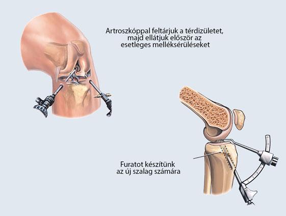 térd kezelése sérülés után