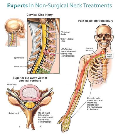 Ülésbetegség: Ha sokat ül és fáj a dereka, lehetséges, hogy Ön is ezzel küzd