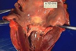 ízületi fájdalom és streptococcusok)