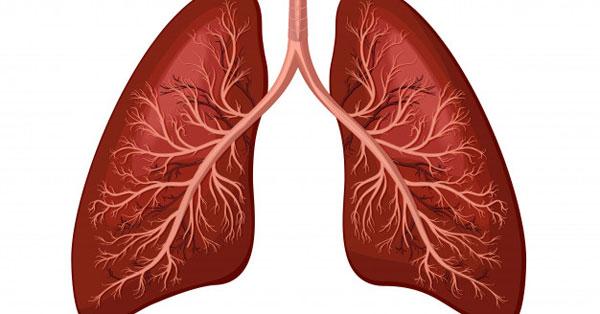 A tüdőgyulladás kezelése