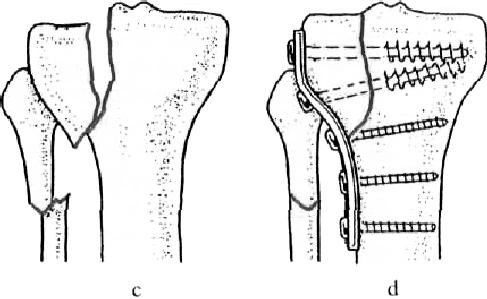 az artrózis elmúlik, ha nem kezelik)