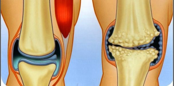 artrózis és a könyökízület ízületi gyulladása)