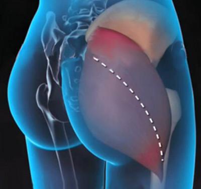 3. a csípőízület deformáló artrózisa. kezelés)