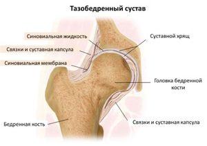 3. a csípőízület deformáló artrózisa. kezelés