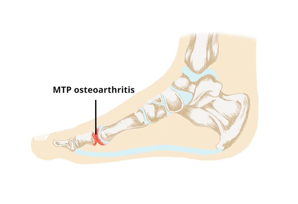 Metatarsopharyngealis arthrosis - bezenyeiskola.hu