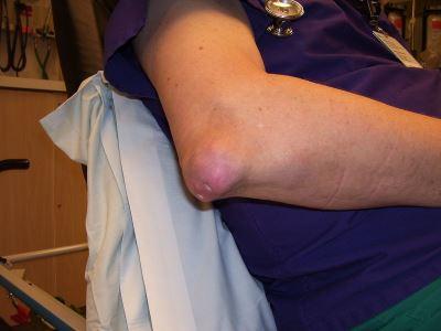 köszvény artrózisos kezelése ízületi fájdalomcsillapító ízületek áttekintése