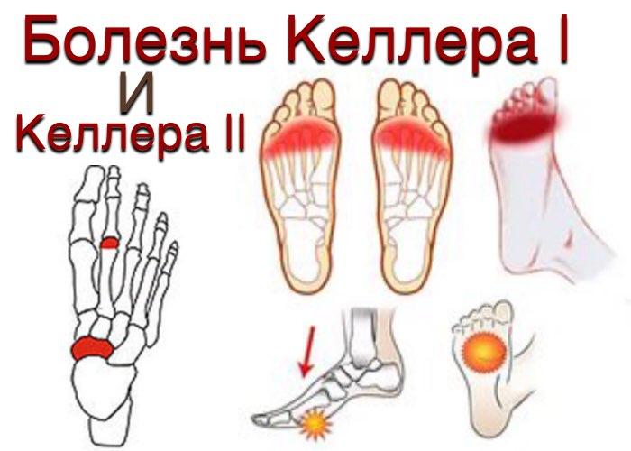 a térdízület kezelésének szklerózisa