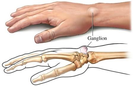 hogyan lehet helyreállítani az ízületi mozgást és eltávolítani a fájdalmat)