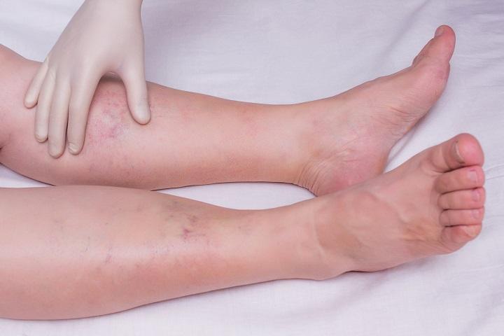 a lábak ízületeinek gyulladása)