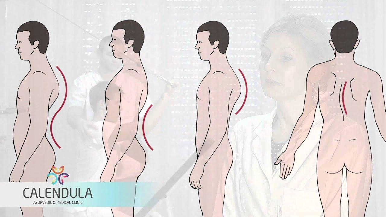 térd skoliozis kezelés)