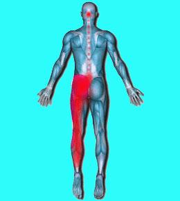 Csípőfájdalommal küzd? Ez állhat a hátterében! - EgészségKalauz