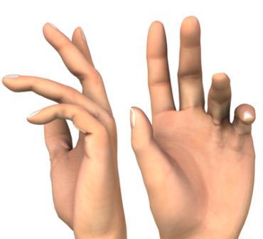 posztraumás ujj artritisz ízületi fájdalom és pirazinamid