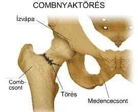csípőízület törése hogyan kell kezelni ízületi duzzanat artrózissal